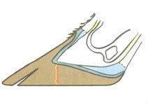 Profil typique d'un onglon obtenu sur sols durs (béton par exemple)